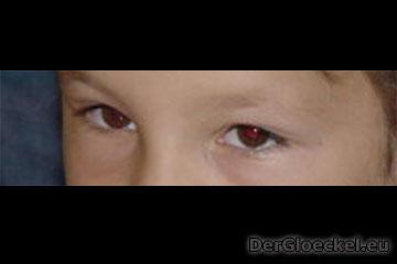 Kindesmissbrauch - Beweismittelvernichtung bei ZEUGEN JEHOVAS